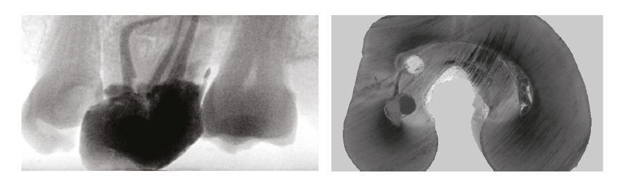 cursos endodoncia obturación