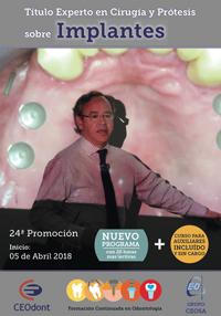 curso-experto-implantologia-2018