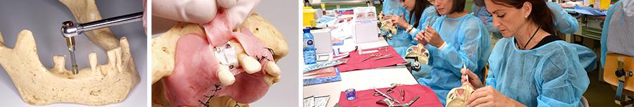 formación en implantología colocación de implantes