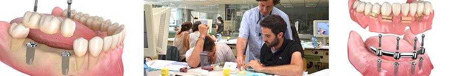 formación en implantología prótesis sobre implantes