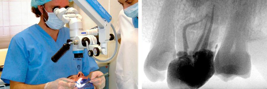formacion endodoncia dental