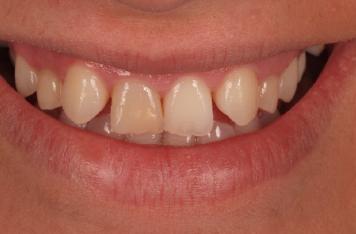 mockup-dental-caso-clinico-2