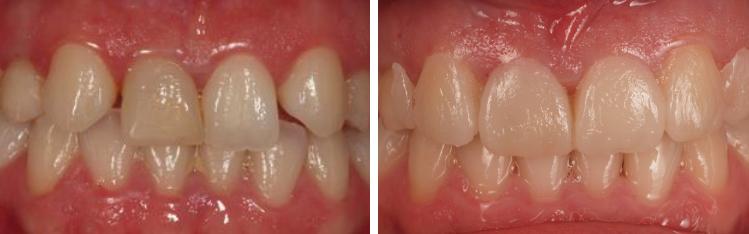 mockup-dental-caso-clinico-3