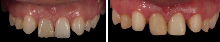 mockup-dental-caso-clinico-6