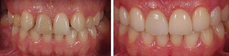mockup-dental-caso-clinico-7
