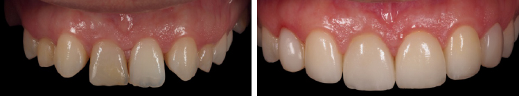 mockup-dental-caso-clinico