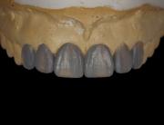 mockup-dental-prototipo-formacion-odontologia