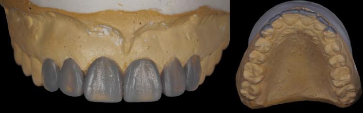 mockup-dental-prototipo