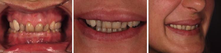 mockup-dental-mejorar-sonrisa-caso-clinico-1