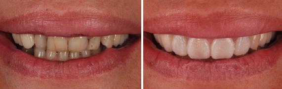 mockup-dental-mejorar-sonrisa-caso-clinico-3