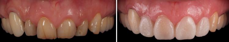 mockup-dental-mejorar-sonrisa-caso-clinico-4