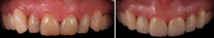 mockup-dental-mejorar-sonrisa-caso-clinico-7