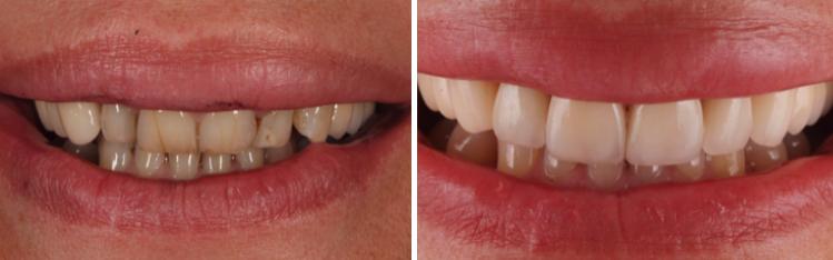 mockup-dental-mejorar-sonrisa-caso-clinico-8