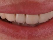 mockup-dental-mejorar-sonrisa-caso-clinico-9