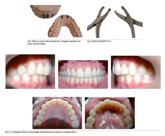 ortodoncia-alineadores-invisibles-2