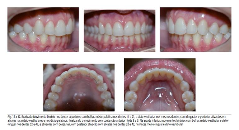 ortodoncia-alineadores-invisibles-4