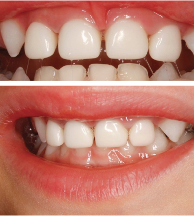 Figure 2 –A: Clinical photograph one week after treatment under GA. Notice the excellent fit of the crowns and the healthy gums. B: Lateral view taken at the same date showing good occlusion at the canine area.