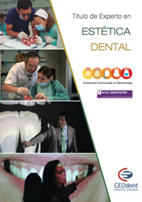 Curso-Estetica-Dental-folleto